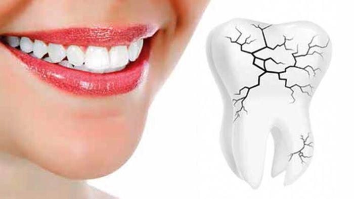 Diş gıcırdatması neden olur? Bitkisel tedavi yöntemleri