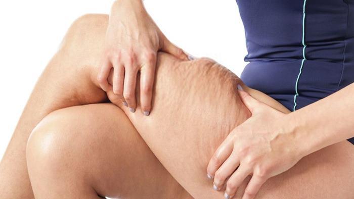 Bacak İçin Selülit Egzersizleri