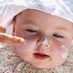 Bebeklerde kuru cilt