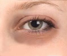 Göz altı morlukları için bitkisel çözümler