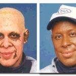 Vitiligo Nedir Tedavisi Belirtileri