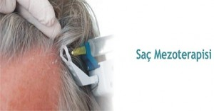 sac-mezoterapisi
