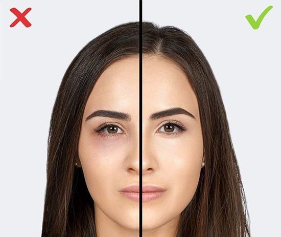 Göz altları için düzeltici kullanmayı ihmal etmek